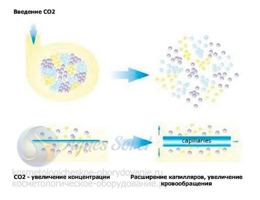 действие карбокситерапии